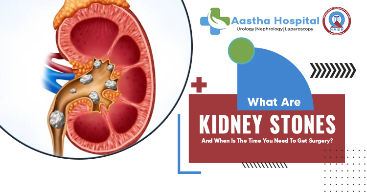 What are kidney stones and when is the time you need to get surgery