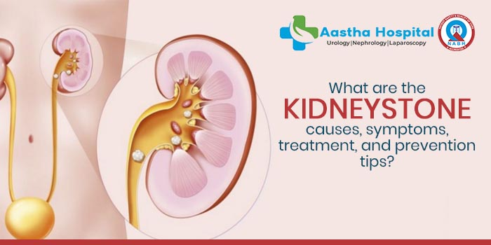 What are the kidney stone causes, symptoms, treatment, and prevention tips?